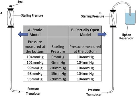 starling resistor sleep apnea starling resistor 28 images effect of external positive and negative pressure on venous flow