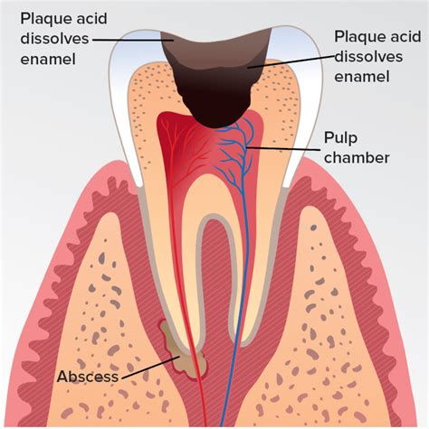cavity diagram tooth decay diagram