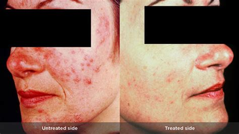 how to cure a red swollen nose rosacea support group rosacea types causes and remedies