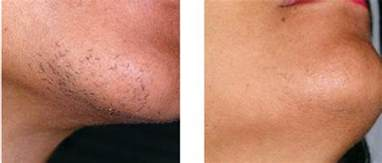 laser hair removal photos behold your skin maximize the effects of laser hair
