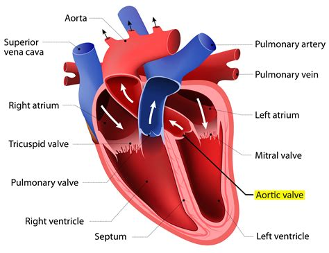 aortic stenosis diagram aortic stenosis diagram 28 images aortic valve