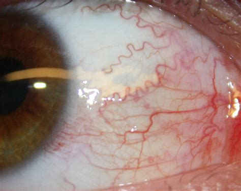 blood in s eye blood vessels in the eye explore msitua s photos on flickr flickr photo