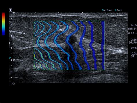 Oxyglow Platinum Normal Series advanced imaging clinical gallery aplio platinum series ultrasound products canon
