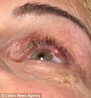 california doctor pops a stye next to patient's eyeball
