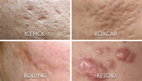 acne scar removal treatments in essex avalon medispa