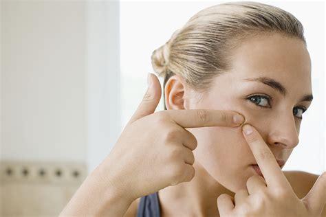 acne alimentazione acne giovanile e alimentazione sono correlati