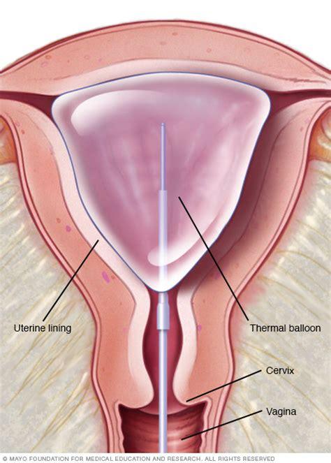 afib ablation side effects endometrial ablation drugs