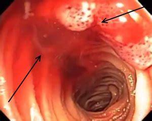 gastrointestinal bleeding germany pdf ppt