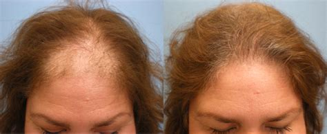 female mid frontal balding us hair transplant 187 after hair transplant