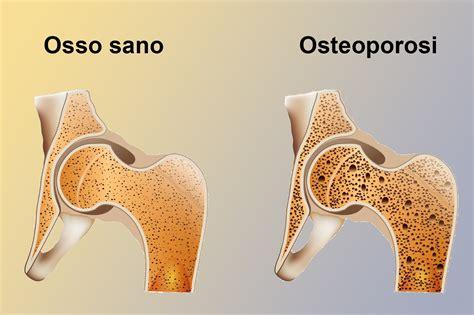alimentazione osteoporosi osteoporosi