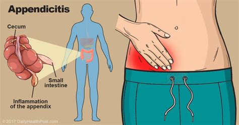 appendicitis location diagram 9 signs of appendicitis you probably didn t about
