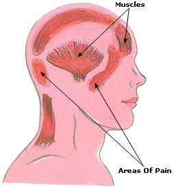 headaches: causes, natural home remedies & diet