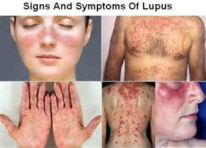 nutriinfo lupus can be prevented with omega 3