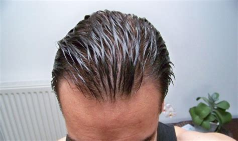 male fine hair wet crown hair loss help forums history of a second hair
