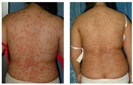 vitiligo best treatment portable hand held 311nm narrow