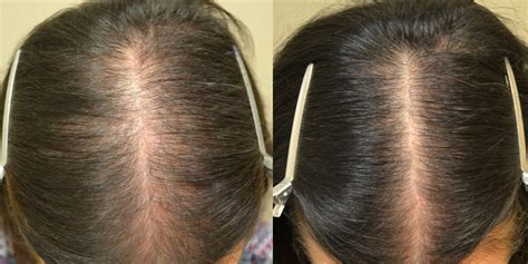 does minoxidil work women before and after finasteride spironolactone and minoxidil females