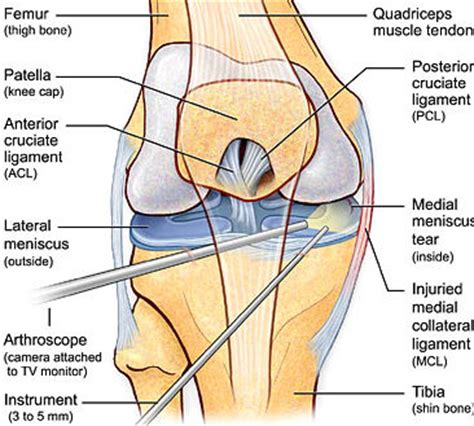 pain and suffering awards affirmed for knee and back