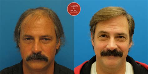 fut hong kong hair transplant dr hasson 4435 grafts one session fut 3 years post op