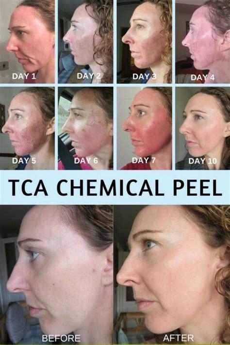 10 glycolic acid peel side effects best 25 tca peel ideas on tca chemical peel