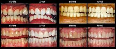 best home teeth whitening kit the best teeth whitening kits for home use in 2017 read