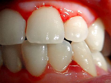 Pembersihan Karang Gigi Di Ahli Gigi mengenal peridontal desease penyakit gusi ilmu kunci