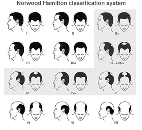 male pattern baldness name world hair research 187 blog archive 187 men s hamilton norwood
