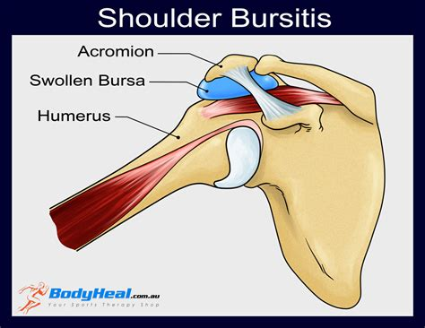 Ac Sharp Type Au A5sey what is bursitis causes symptoms treatment options