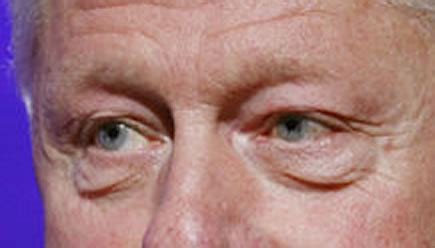 clinton eye color wrinkles page 2