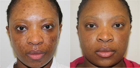 black doll laser before and after suddenly slimmer day spa wellness az wedding