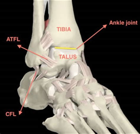 Interior Ankle Sprain by Ankle Ligament Repair Surgery Surgeon