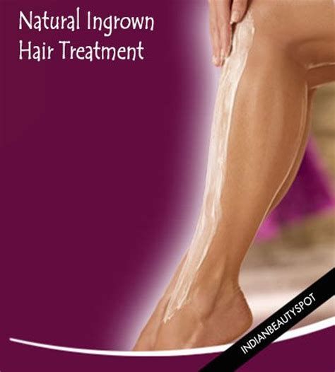 best way to remove ingrown long hair in upper inner thigh top 82 best images about hair removal on pinterest smooth