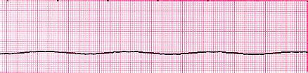 critical care: ventricular rhythms, asystole, pea | rn