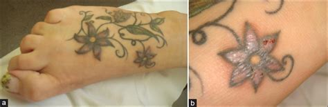 tattoo ink allergy test severe adverse events related to tattooing an