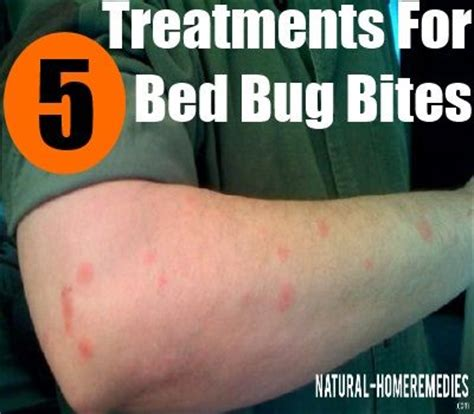 5 effective treatments for bed bug bites health care