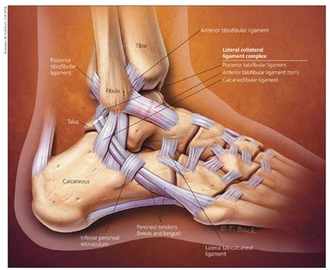 Interior Ankle Sprain by Lateral Ankle Sprain Axon Physio Acupuncture