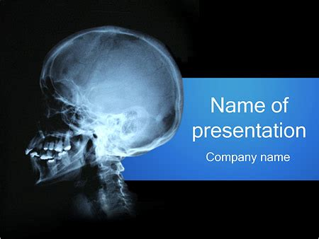 Human Skull Powerpoint Template Backgrounds Id 0000001853 Smiletemplates Com Radiology Powerpoint Template