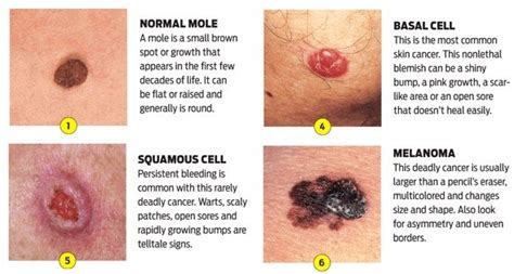 8 Tips For Spotting Skin Cancer Early by Skin Cancer The Facts Aspire Health Corp