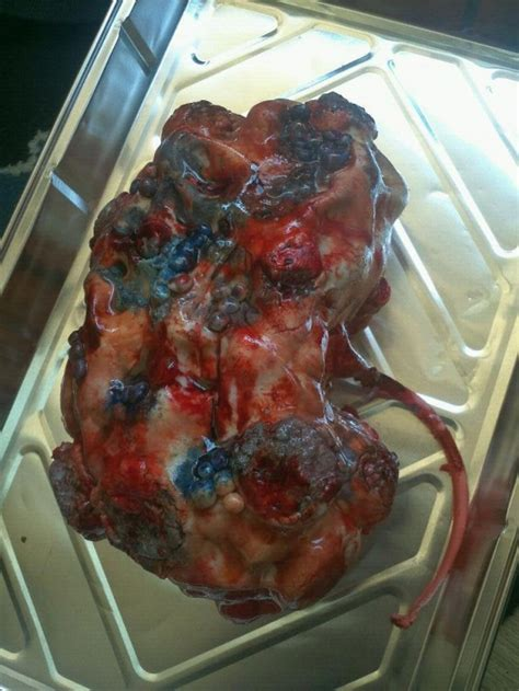 Galerry 10 most horrific human parasites