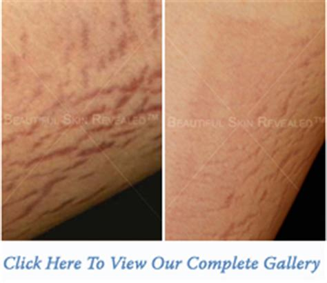 stretch marks treatment houston texas tx new york ny