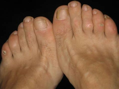corns and calluses at home remedies for smooth summer