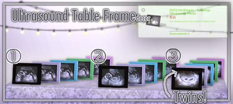 my sims 4 blog ultrasound table frames by devoidcreations