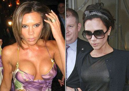 Posh I Want More Breast by Did Posh Spice Beckham Remove Breast Implants