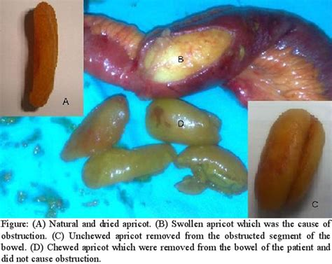 Blood In Stool And Crs In Stomach by An Cause Of Small Bowel Obstruction Dried Apricots