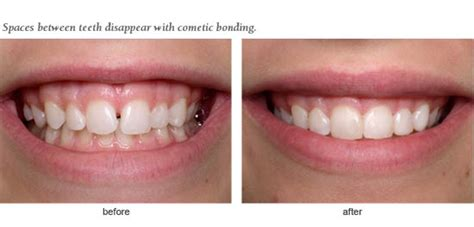 alpharetta ga dentist cosmetic composite bonding