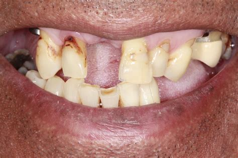 missing front   teeth replaced  dental implants