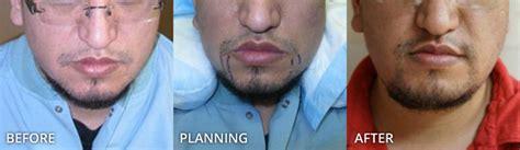 hair restoration before and after pictures clevens face przeszczep włos 243 w twarzy zdjęcia przed i po zabiegu dr