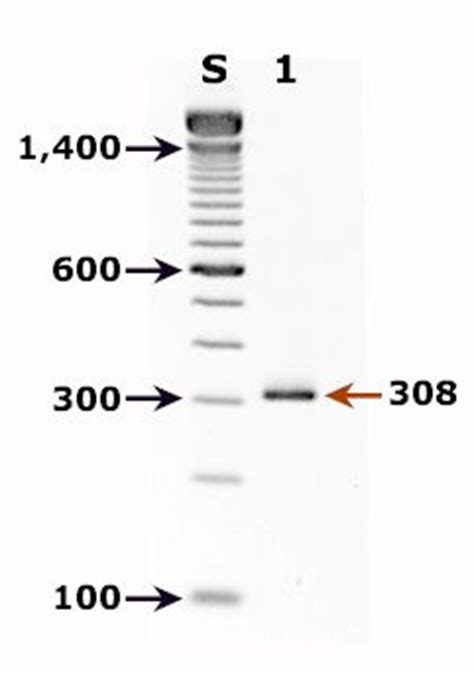 Dna Pcr Stool Test by Diagnosis