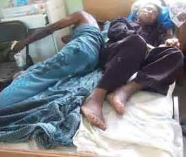 sharing a bed patients forced to share bed in gphc kaieteur news