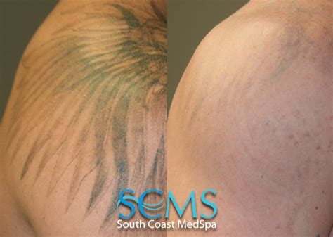 laser tattoo removal los angeles los angeles laser removal procedure in progress