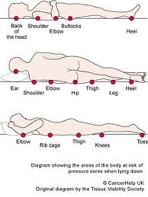 pressure ulcer locations diagram bed sores diagram bed positioning handouts for pressure
